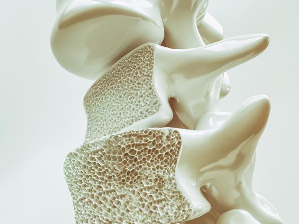 【イメージ】骨粗鬆症