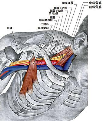 胸郭出口症候群の原因について